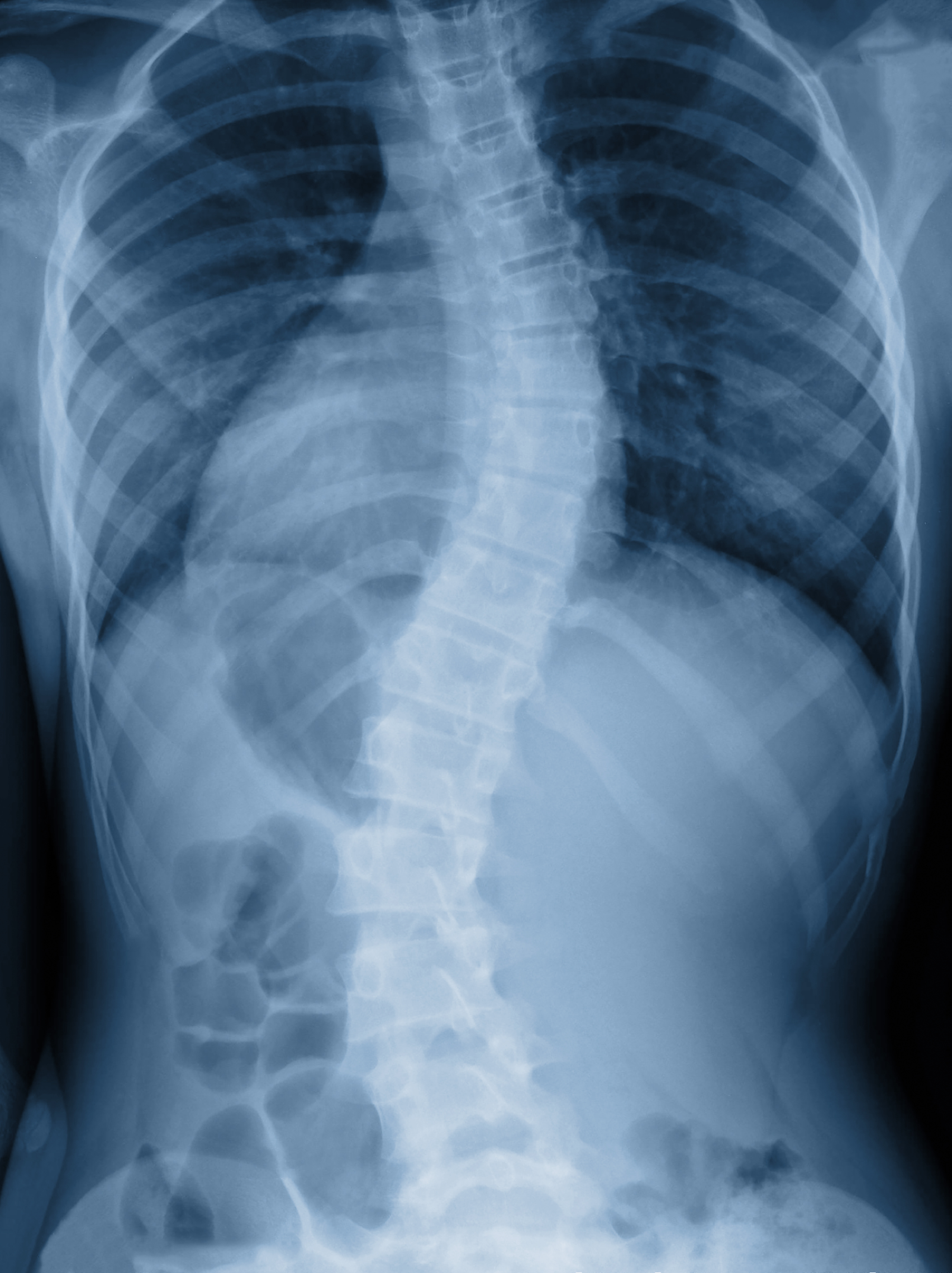 x-ray of Scoliosis spine in Hansen Chiropractic in West Babylon